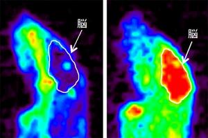 脂溶性キレーター「ジスルフィラム」併用による銅の脳内移行の促進
