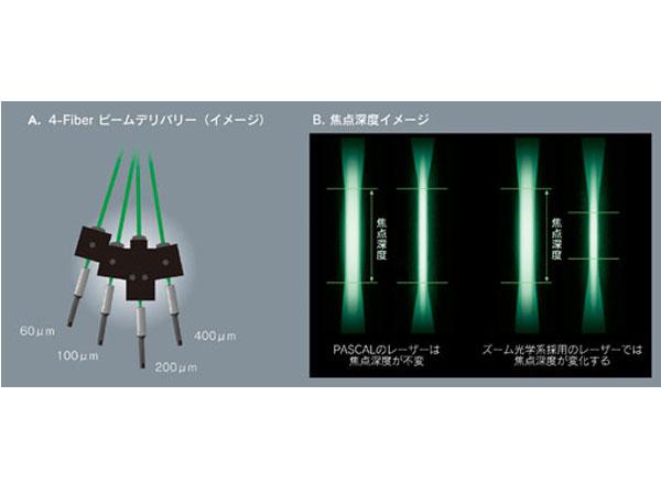 トプコン,眼科用パターンレーザ光凝固装置に新モデルをラインナップ