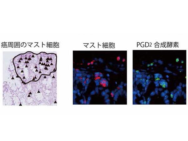 東大,大腸炎とそれに伴う細胞の癌化を抑制する物質を発見