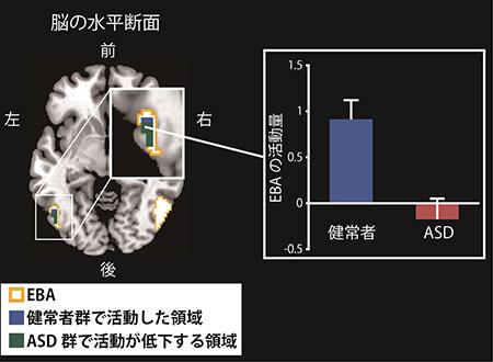 生理研ら,自閉症スペクトラム障害者は自分の動作が真似をされたことを気づくための脳部位の活動が低下していることを発見