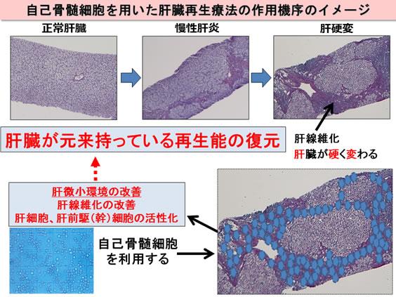 山口大,培養自己骨髄細胞による低侵襲肝臓再生療法の臨床研究を開始