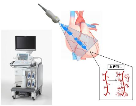 東北大ら,超音波に血管新生作用があることを発見