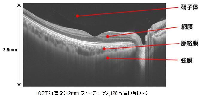トプコン,光干渉計測を利用した3次元眼底像撮影装置を発売