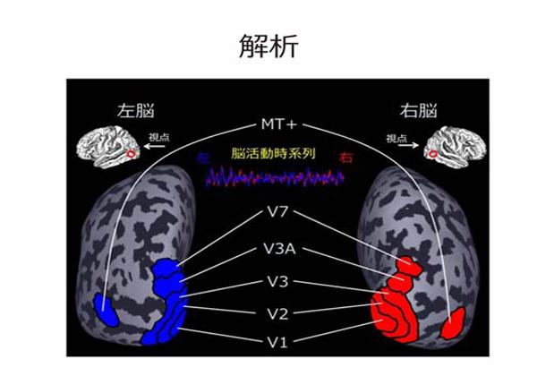 京大ら,脳の映像酔い特有の状態を発見