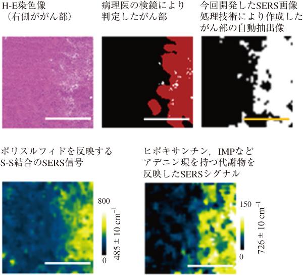 図3 マウス神経膠芽腫(グリオブラストーマ)モデルにおけるSERS imagingとがん部自動抽出。 病理医がヘマトキシリン・エオジン染色像(H-E上段左)で検鏡して得られた「教師データ」で描出したがん部(上段中央)の画像情報に基づき,がん部,非がん部に特異的なSERSシグナルを統計的に抽出し,がん部の自動抽出を行なった(上段右)。がん部に顕著に認められる代謝物として活性硫黄種であるポリスルフィドとヒポキサンチン,イノシン1リン酸(IMP)などに含まれるアデニン環含有代謝物が同定された。ポリスルフィドは強力なレーザーを用いる質量分析では分解するため検出できなかった。(バーは上段が2 mm,下段が0.5 mm。)