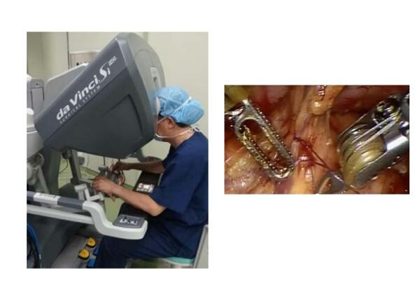 愛媛大のロボット手術,先進医療認可を取得