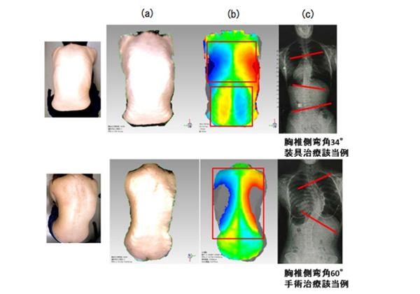 北大,3Dスキャナーによる側弯症診断法を開発