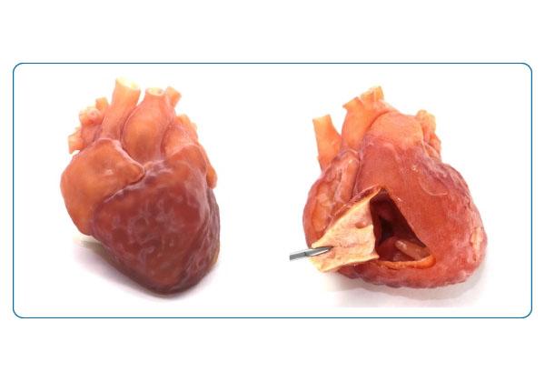 国循ら,心臓3Dモデルの量産化技術を開発