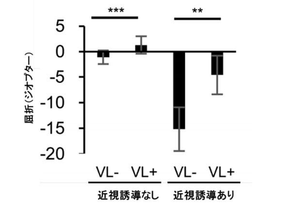 慶大,バイオレット光の近視抑制作用を発見