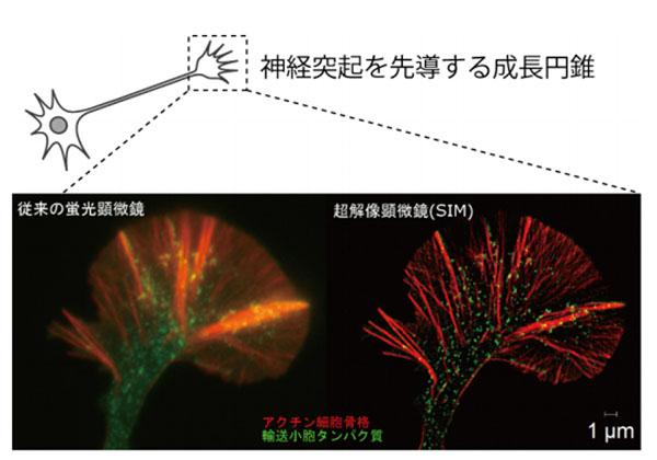 新潟大,超高解像顕微鏡で神経成長を観察