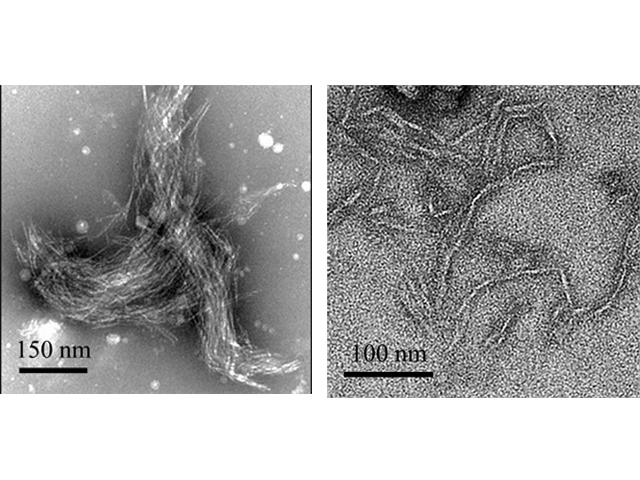 NAISTら,光でアミロイド線維を作製