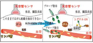 がん診断を可能にする機能性光音響プローブ 出所:JST