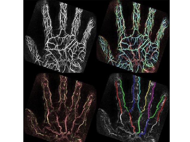京大,光超音波イメージングで手掌動脈を可視化