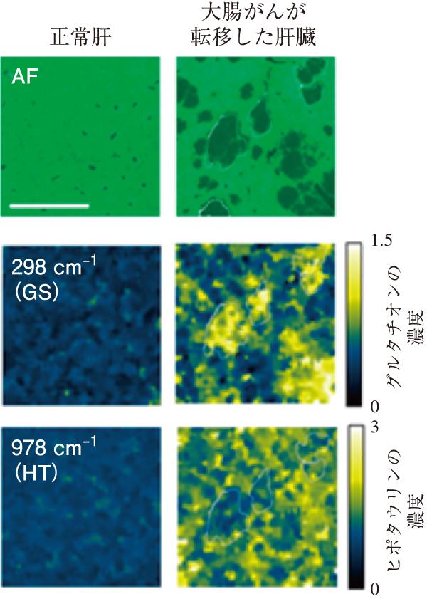 図2 SERS imagingによるヒト大腸がん肝移転モデルにおけるグルタチオン(GS),ヒポタウリン(HT)の組織内検出(AF:自家蛍光像 バーは1 mm)。