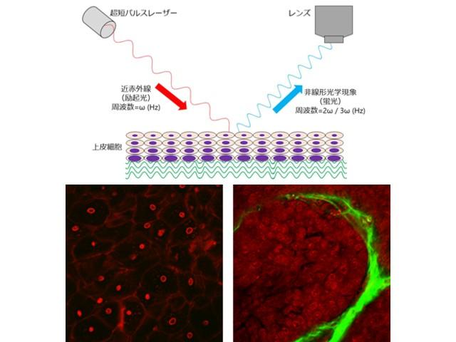阪大ら,非侵襲にがんを診断する光生研を開発